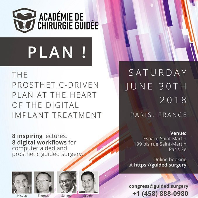 das-acg-plan-congress-implant